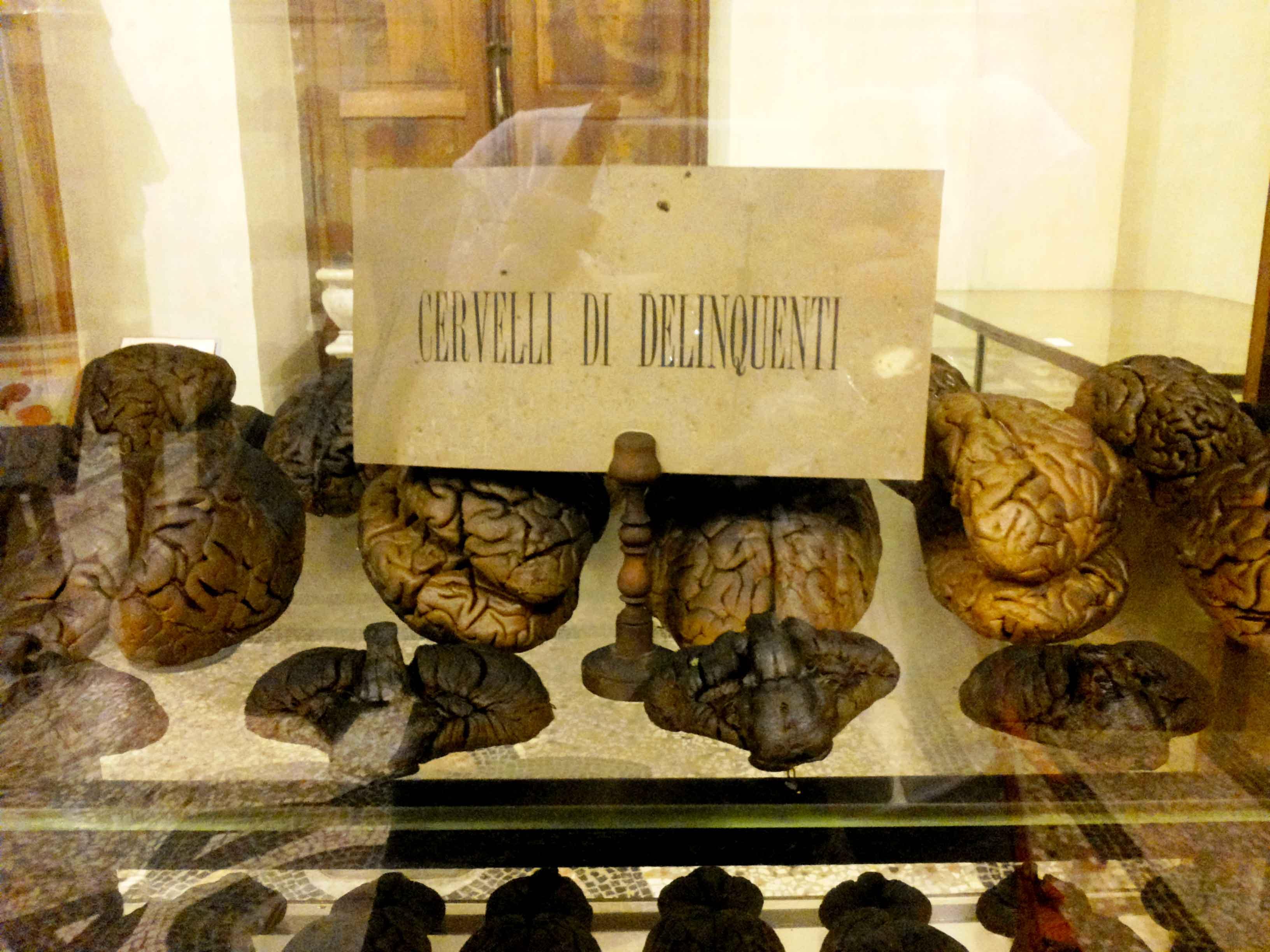 museo di anatomia umana di torino viaggi verde acido