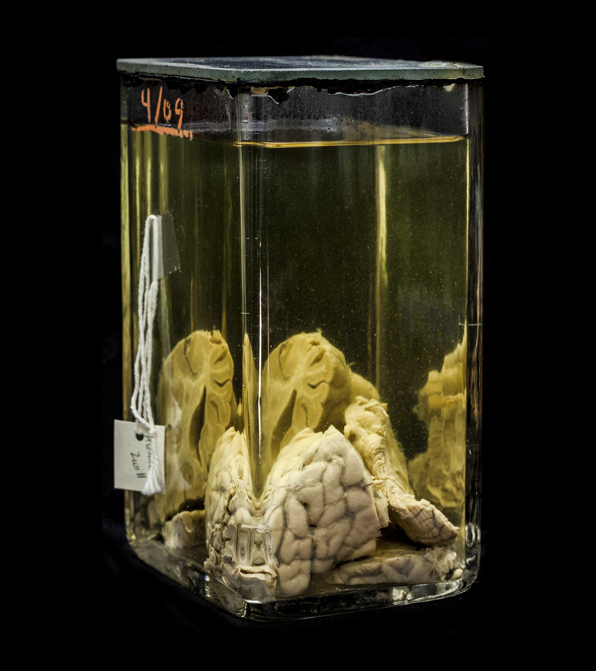 cervello mutter museum philadelphia