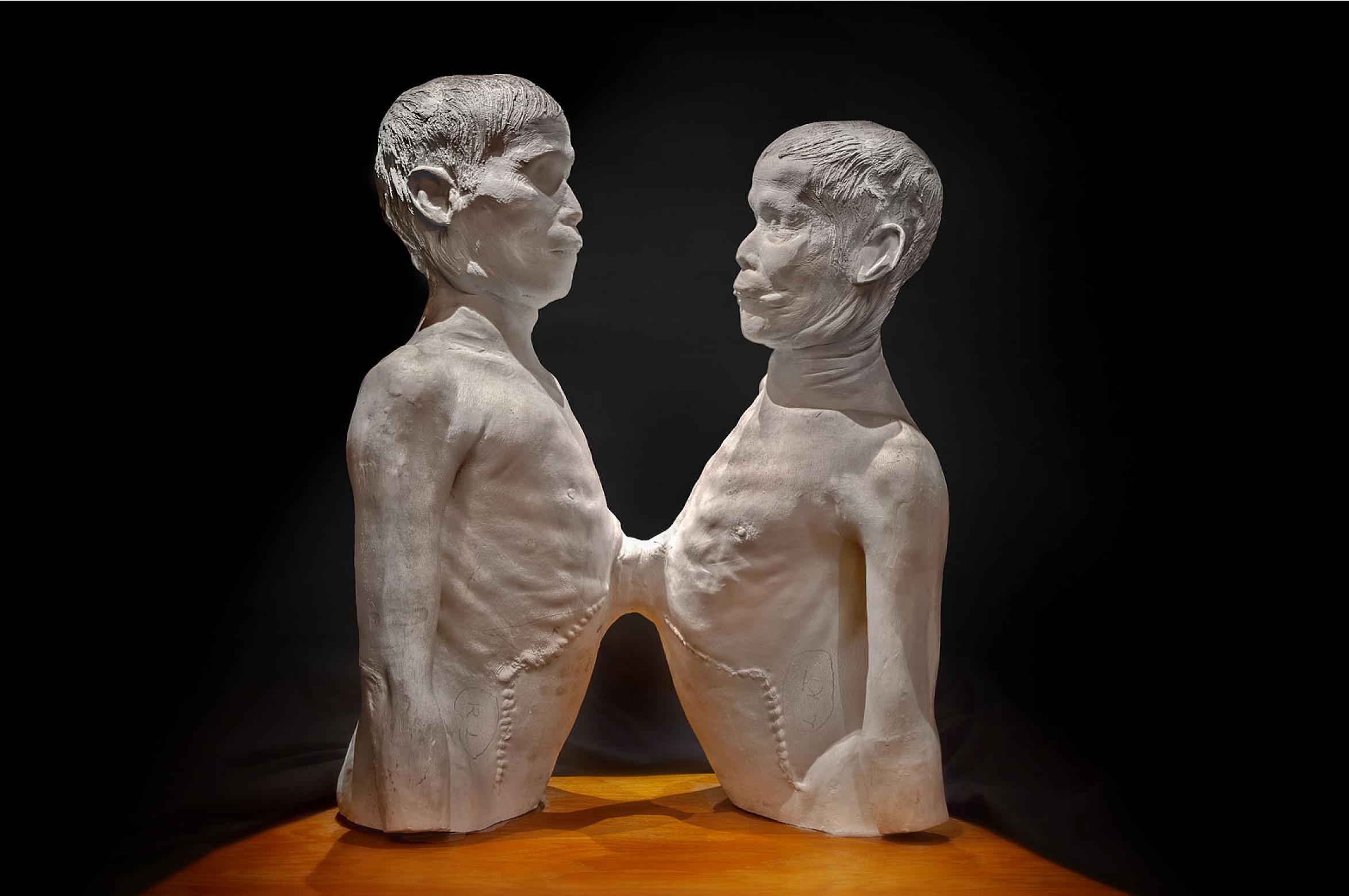gemelli siamesi museo