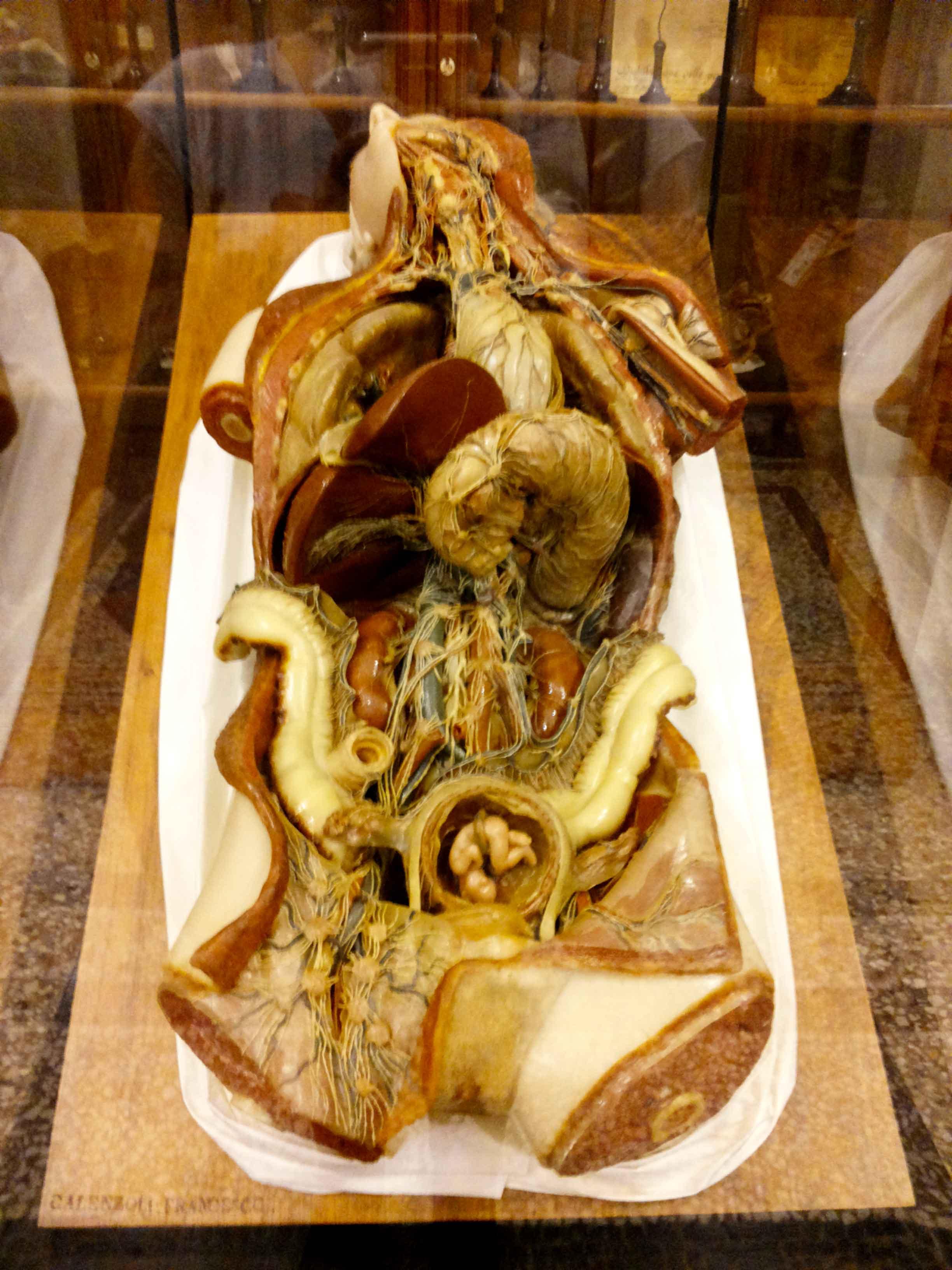 Museo di Anatomia Umana di Torino - Viaggi Verde Acido