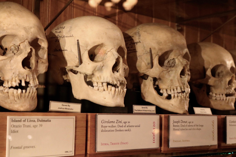 collezione teschi mutter museum